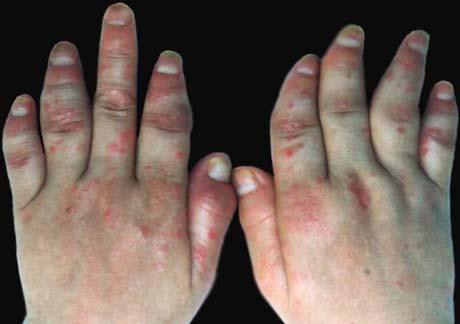 牛皮癣常见的病因有哪些